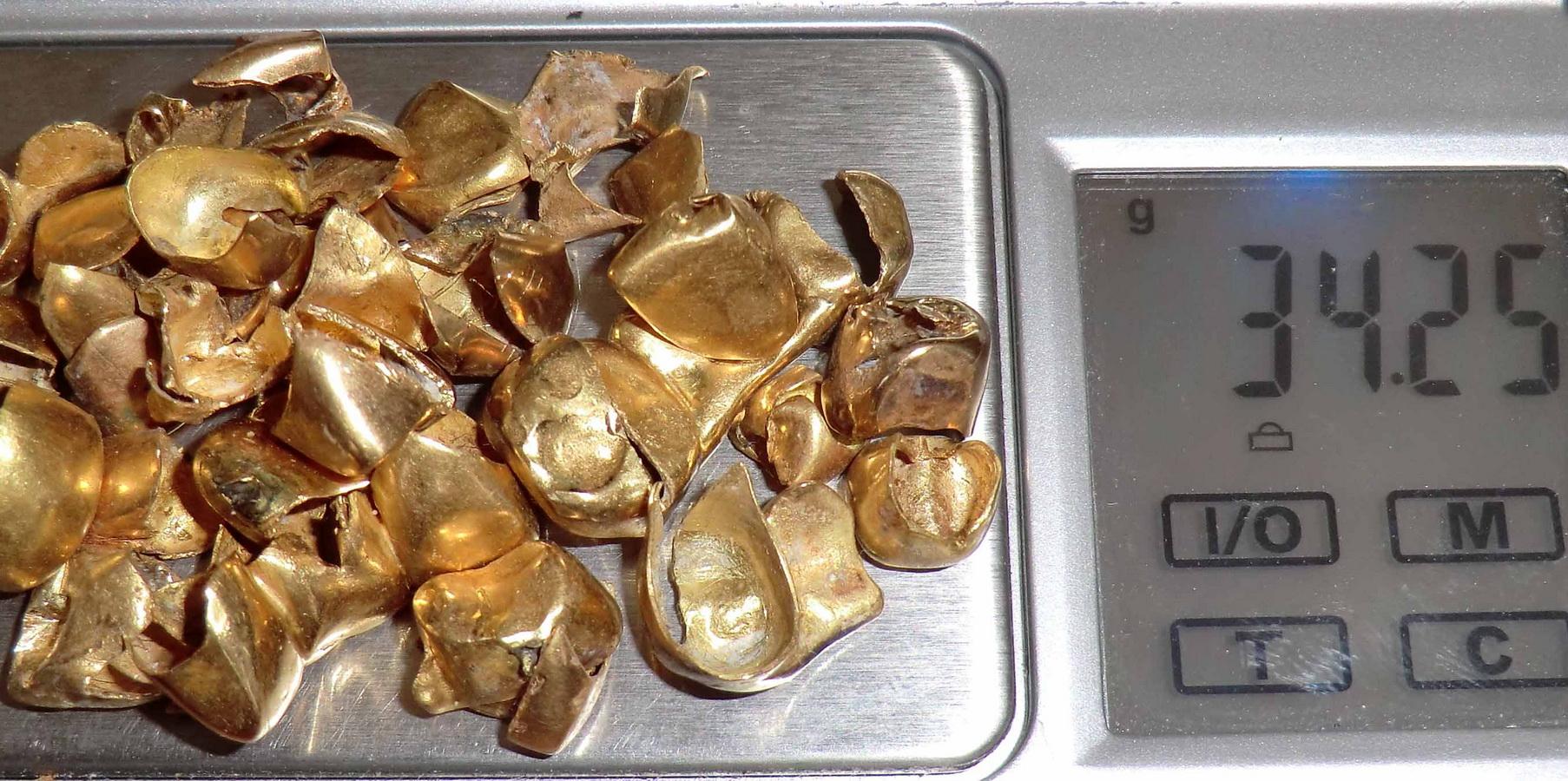 Покупаем золотые коронки